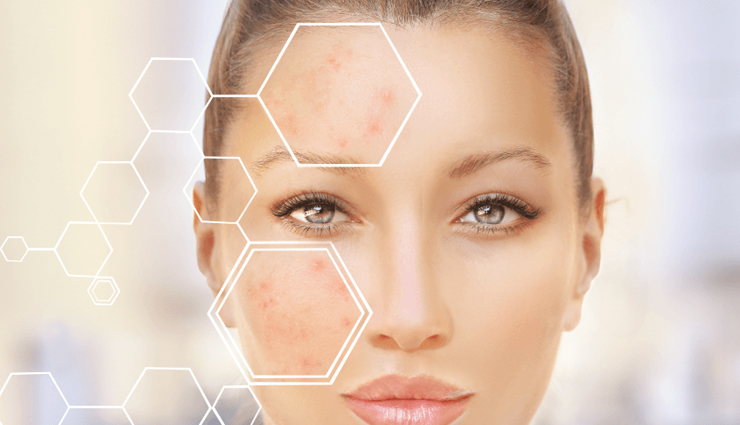 7 Effective Home Remedies To Treat Acne