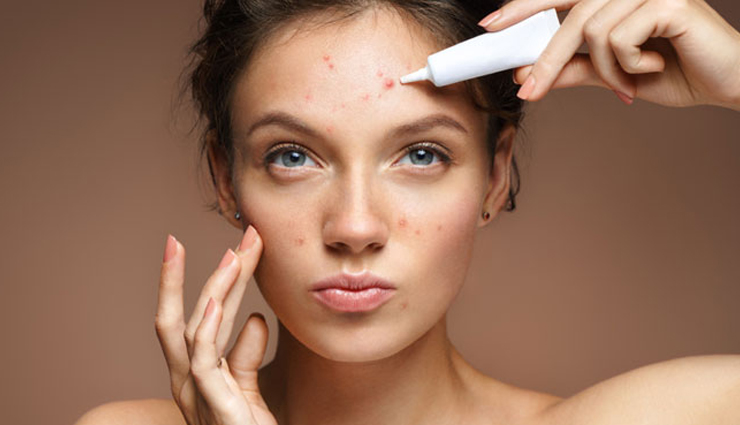 most common beauty problems every girl faces,common beauty problems,beauty problems faced by girls,beauty tips,beauty hacks