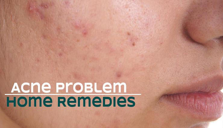 7 Home Remedies To Get Rid of Acne