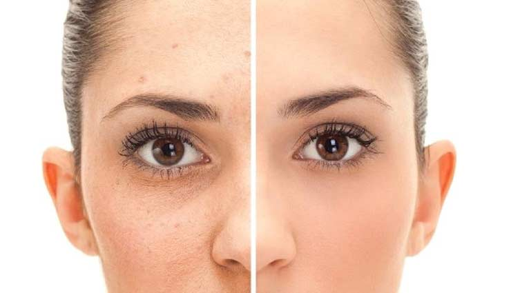 home remedies,home remedies for acne scars,skin care tips,beauty tips,acne scars