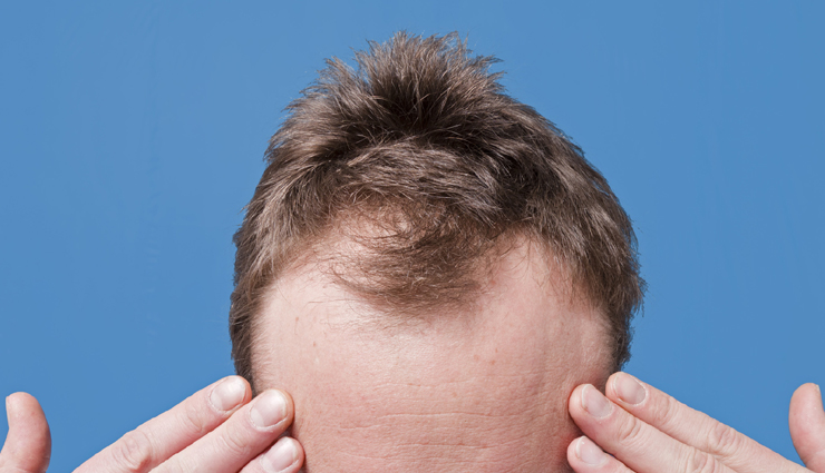 Baldness is Quite Worrying, Let us Look at Some Baldness Treatment Home Remedies