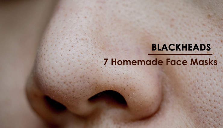 7 Homemade Face Masks To Help You Get Rid of Blackheads