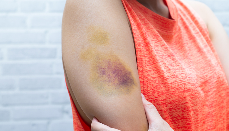 6 Home Remedies To Help You Treat Bruises