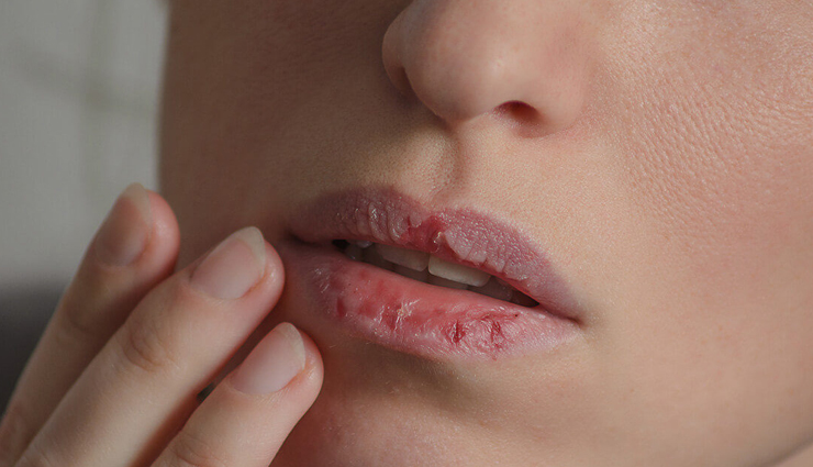 5 Home Remedies For Treating Dry and Chapped Lips