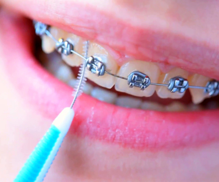 tips to clean braces,braces care tips,Health tips,teeth care tips