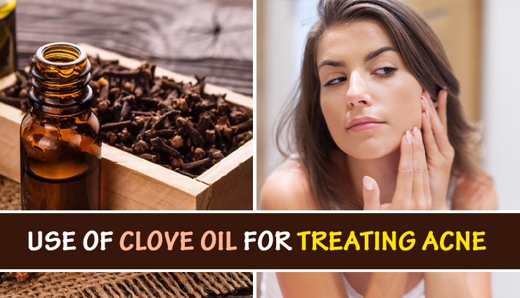 Different Ways To Use Clove Oil For Treating Acne