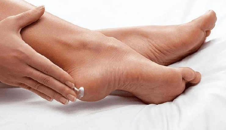 remedies to treat cracked heels,home remedies,cracked heels,skin care tips