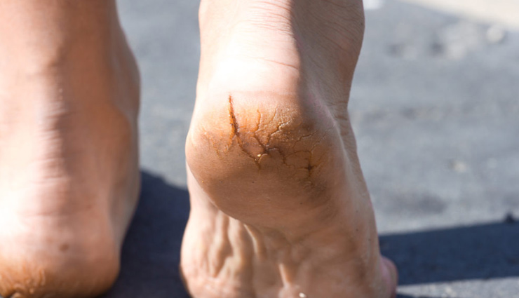 5 Home Remedies To Treat Cracked Heels