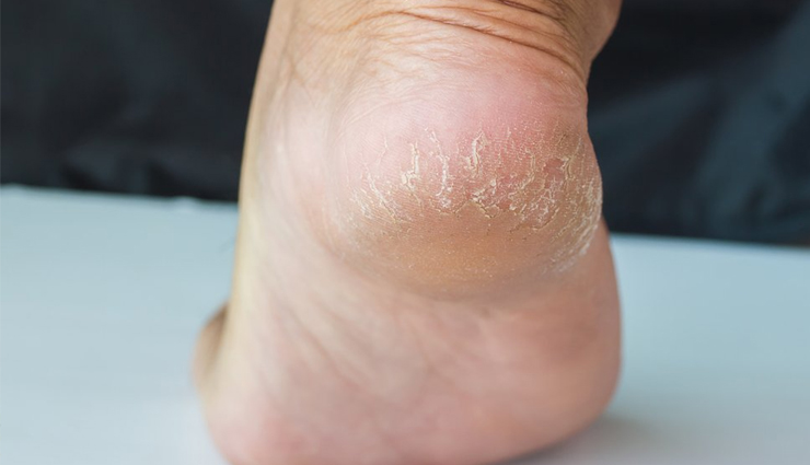 5 Natural Ways To Treat Cracked Heels at Home