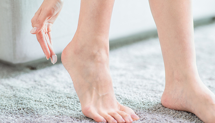 6 Home Remedies To Treat Cracked Heels