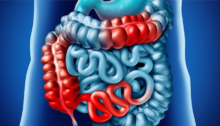 13 Home Remedies Effective For Crohn's Disease