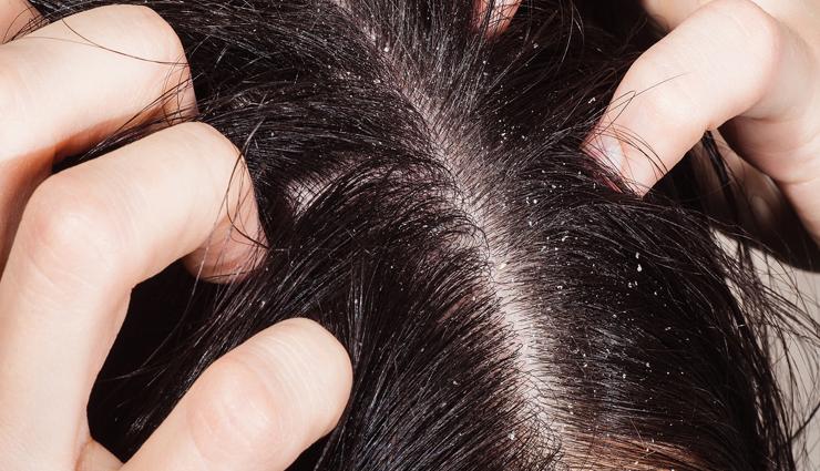 fenugreek seeds,dana methi for hair,hair care tips,beauty tips,beauty hacks ,बालों को झड़ने से रोके - मेथी