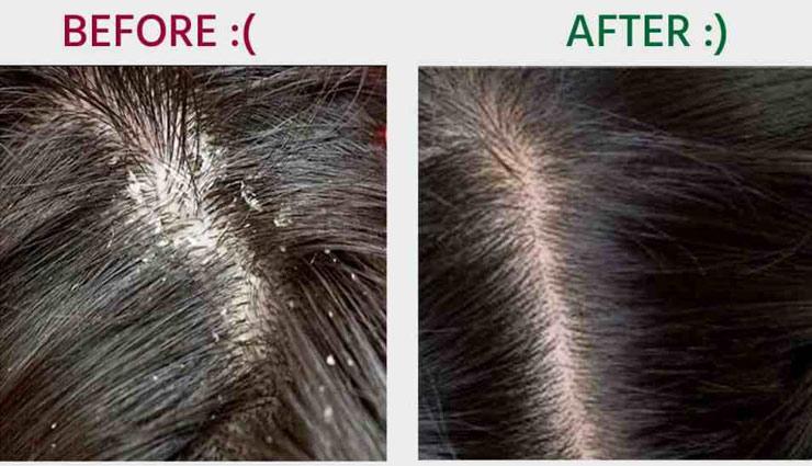 beauty tips,hair care tips,home remedies,dandruff remove tips ,ब्यूटी टिप्स, बालो की देखभाल, घरेलू नुस्खे, डैंड्रफ से छुटकारा, डैंड्रफ उपाय