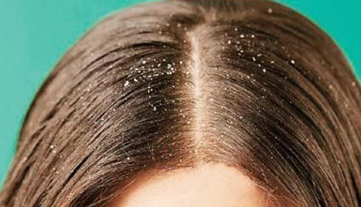 benefits of onion for skin,benefits of onion for hair,onion for skin. onion for hair,hair care tips,skin care tops,beauty tips,beauty hacks,onion beauty benefits