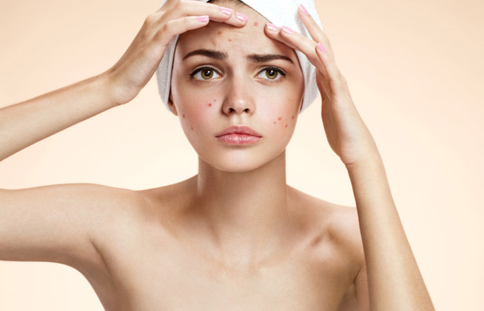 home remedies,home remedies for dark spots,skin care tips,beauty tips