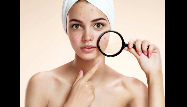 dark spots,face packs for dark spots,home remedies to treat dark spots,skin care tips,beauty tips