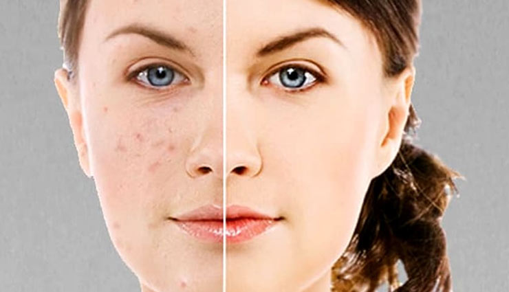 5 Home Remedies To Get Rid of Dark Spots