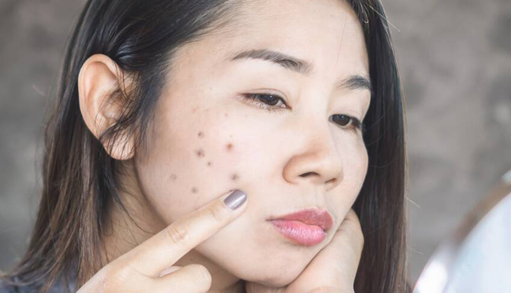 11 Natural Ways To Treat Black Spots on Face