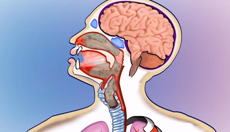 डिप्थीरिया का संकेत हैं गले में खराबी, इन नुस्खों से मिलेगी बीमारी में राहत