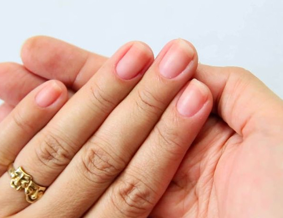 5 Ways To Treat Discolored Nails - lifeberrys.com