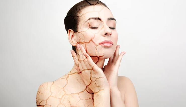 Some of The Best Home Remedies To Treat Dry Skin