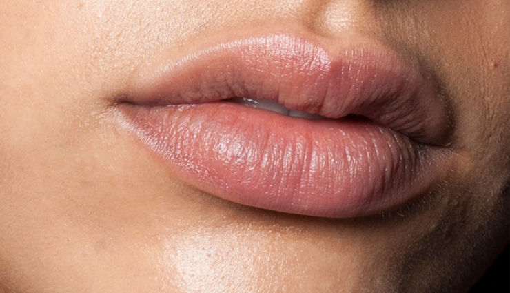 Get Rid of Dry Skin Around The Lips With These Quick Remedies