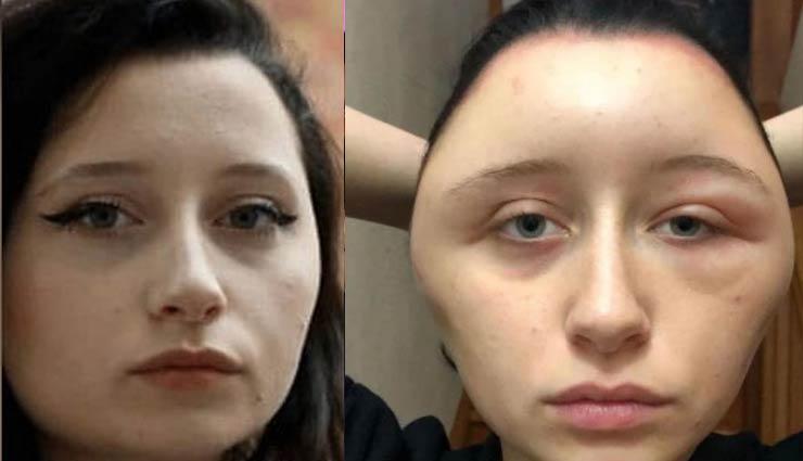 सुंदर दिखने के लिए लड़की ने लगाई बालों में डाई, चिपटा हो गया चेहरा, दोगुना हो गया सिर का साइज़