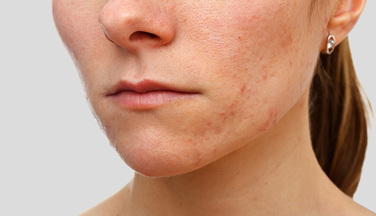 eczema scars,home remedies to treat eczema scars,home remedies,Health tips,fitness tips