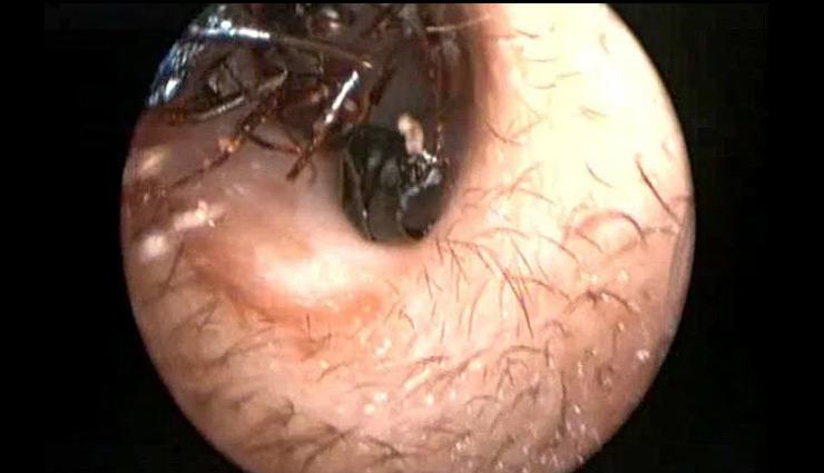 हैरतंगेज मामला : एक महिला की आंख से निकाले गए करीब 14 कीड़े, पढ़े पूरी खबर