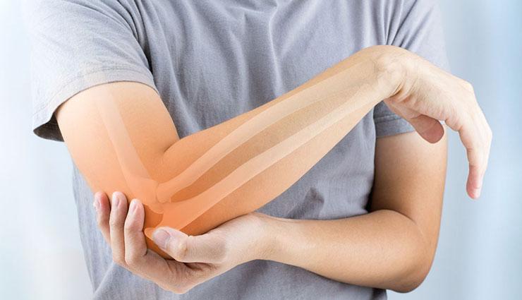Image result for हड्डियों को बेहद कमजोर बनाती है ये बीमारी