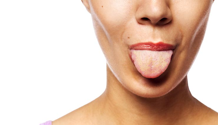 5 Habits You Need To Adopt To Get Rid of Yellow Tongue