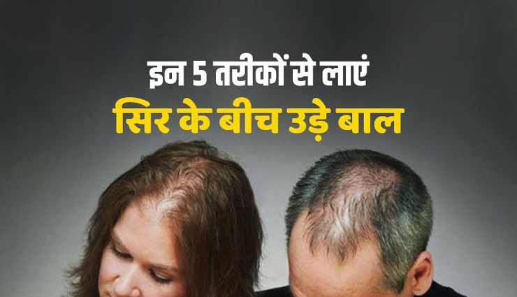 क्या उड़ने लगे हैं आपके भी सिर से बाल, ये 5 घरेलू नुस्खे करेंगे आपकी मदद