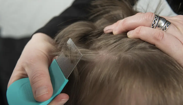 head lice,home remedies for head lice,natural remedies for head lice,hair care tips,beauty tips,summer tips