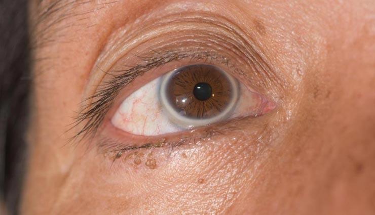 Health tips,health tips in hindi,health secret by eyes,disease symptoms by eyes ,हेल्थ टिप्स, हेल्थ टिप्स हिंदी में, आँखों से सेहत, आँखों से बिअमारियों के संकेत, बिमारियों के लक्षण