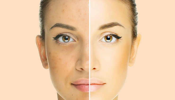 hide acne with makeup,makup tips,skin care tips,beauty tips