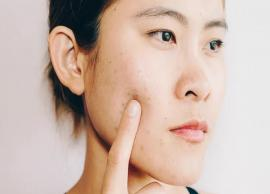 5 Reasons You are Having an Acne Breakout