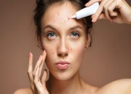 5 Effective Remedies To Treat Adult Acne Naturally