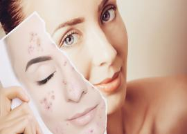 Natural Ways To Treat Acne At Home