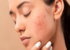 7 Surprising Remedies To Get Rid of Acne