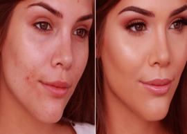 10 Ways To Cover Your Acne Using Makeup