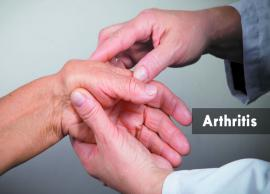 10 Most Common Remedies For Arthritis