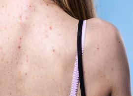 11 Ways To Treat Back Acne at Home