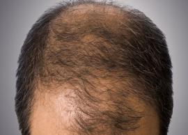Home Remedies To Prevent Premature Baldness