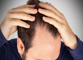 5 Inexpensive And Natural Treatment For Baldness