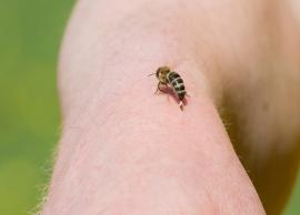 5 Home Remedies To Treat Bee Stings