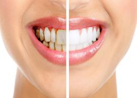 5 Home Remedies To Get Rid of Black Spots on Teeth