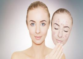 5 Home Remedies To Get Rid of Black Spots From Face