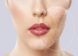 Get Rid Of Blemishes With These 6 Home Remedies