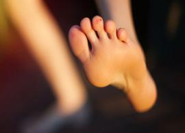 Have Painful Blisters? Try Out These Remedies To Heal Them Quickly