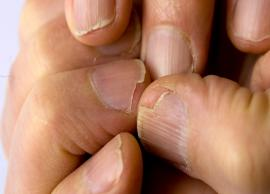 Effective Home Remedies To Treat Brittle Nails And Make Them Look Beautiful